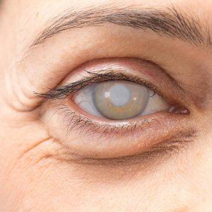 آب مروارید چشم-آرتا طب