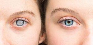 آب مروارید چشم (5)