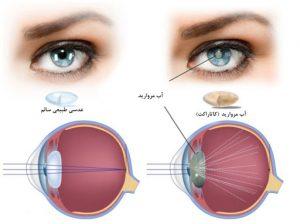 آب مروارید چشم (6)