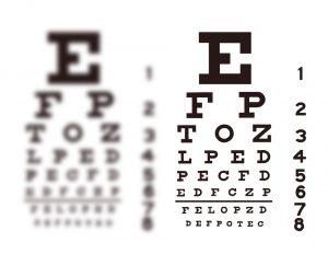 تنبلی چشم در کودکان و علائم آن (Amblyopia (Lazy eye (12)