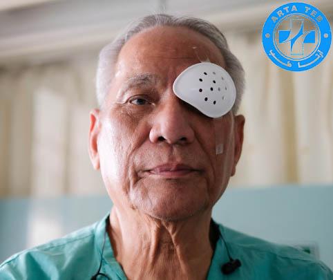 انواع شیلد چشمی پلاستیکی و کاربرد آن بعد از عمل های جراحی چشم (2)