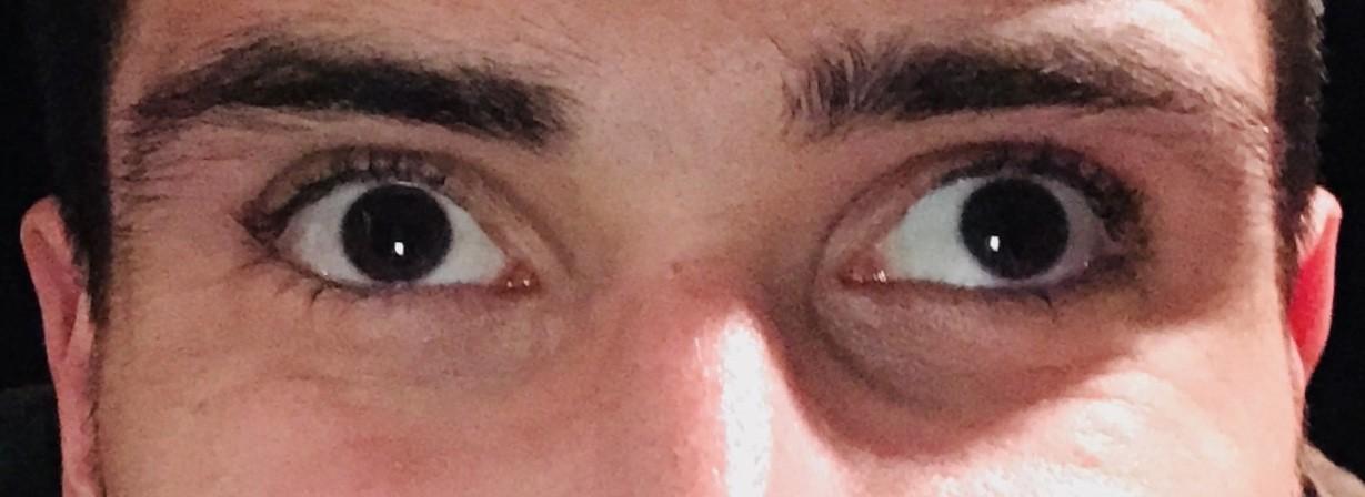 تنبلی چشم در بزرگسالان و علائم آن آرتا طب